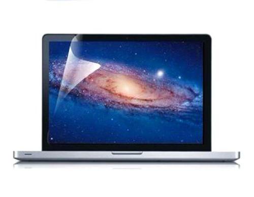 "TOP in Retina Graphic Hard Keyboard Screen Protector Bag MacBook 13"" Retina Model A1425 - Pink"